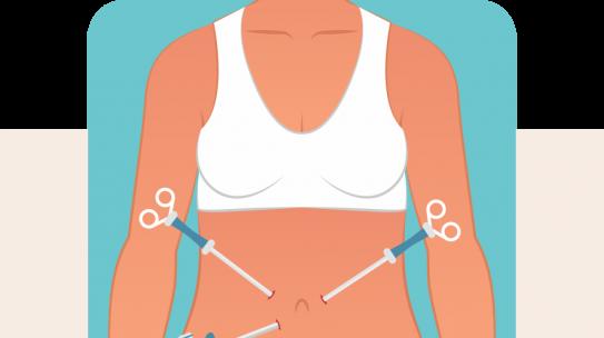 Beneficios de la Cirugía Laparoscópica para la mujer