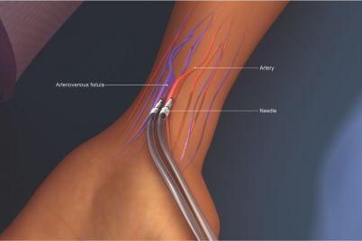 Acceso-vascular-para-hemodialisis.jpg