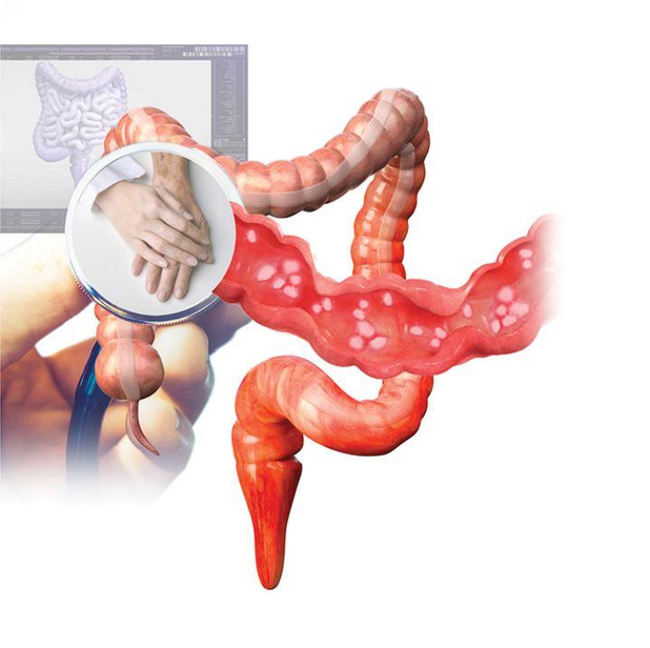 Conoce-la-colitis-ulcerativa.jpg