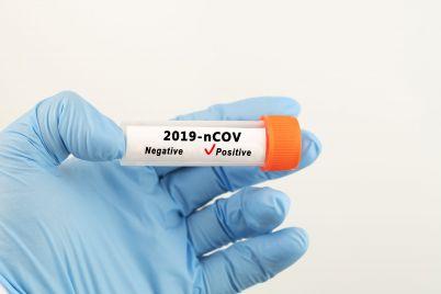 coronavirus-testing-4S6FW7B-scaled.jpg